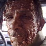 dermal_neurofibroma