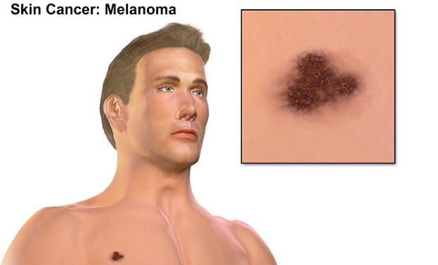 blausen_0633_melanoma