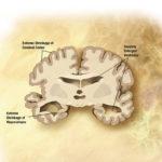 Alzheimer's_disease_brain_severe